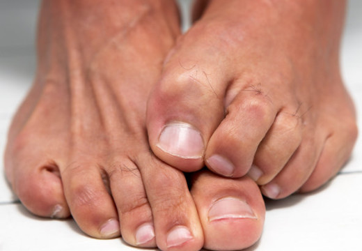 Toenail Fungus Laser Treatment – Quickest And Easiest Way To Treat Toenail Fungus