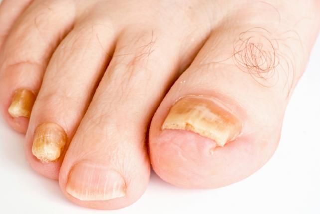 Как размягчить ноготь на ноге с грибком
