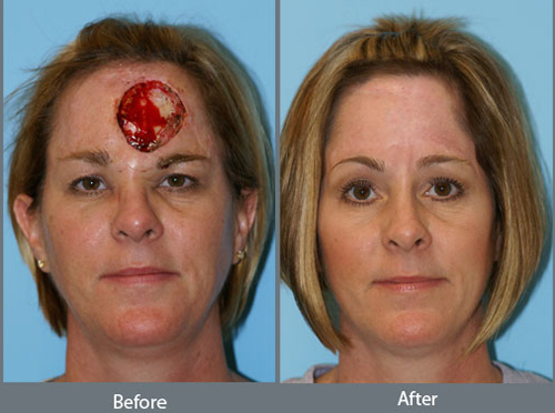 Removing Cancer With Plastic Surgery