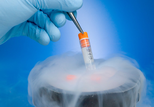 What Are The Benefits Of Getting Cryogenics