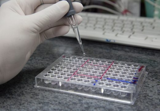What Makes The ELISA Test Necessary? Let's Talk About Its Advantages!
