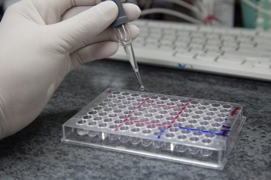 What Makes The ELISA Test Necessary Let's Talk About Its Advantages!
