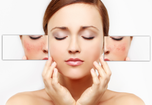 Oily skin: Home remedies to control the shine on the face